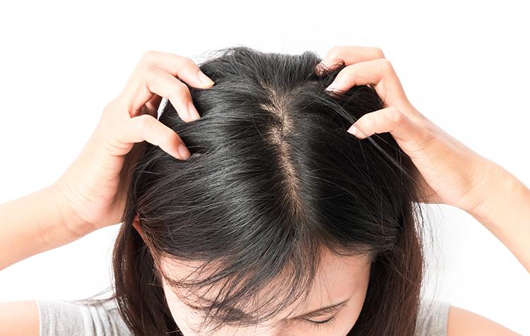 頭のかゆみの原因 症状・疾患ナビ | タケダ健康サイト